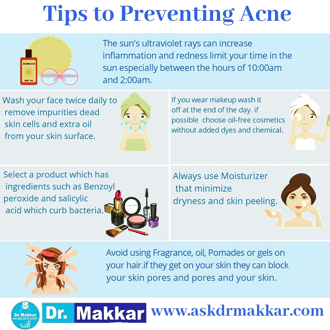 Acne prevetion tips