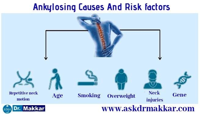 Causes of ankylosing spondolysis in detail