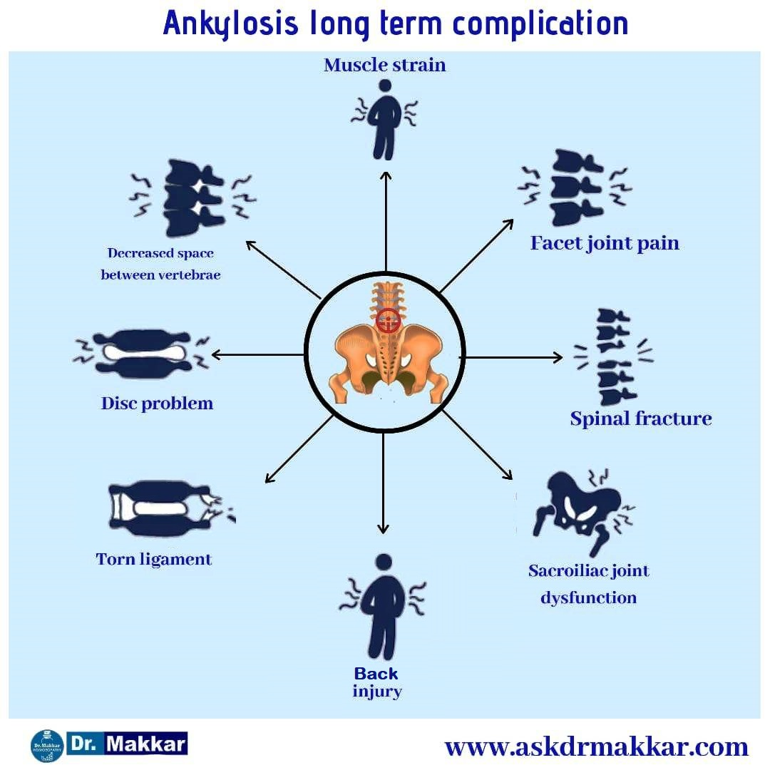 Ankylosis long term impact on body effect Pelvis,Sacroiliac joints & Spine in detail
