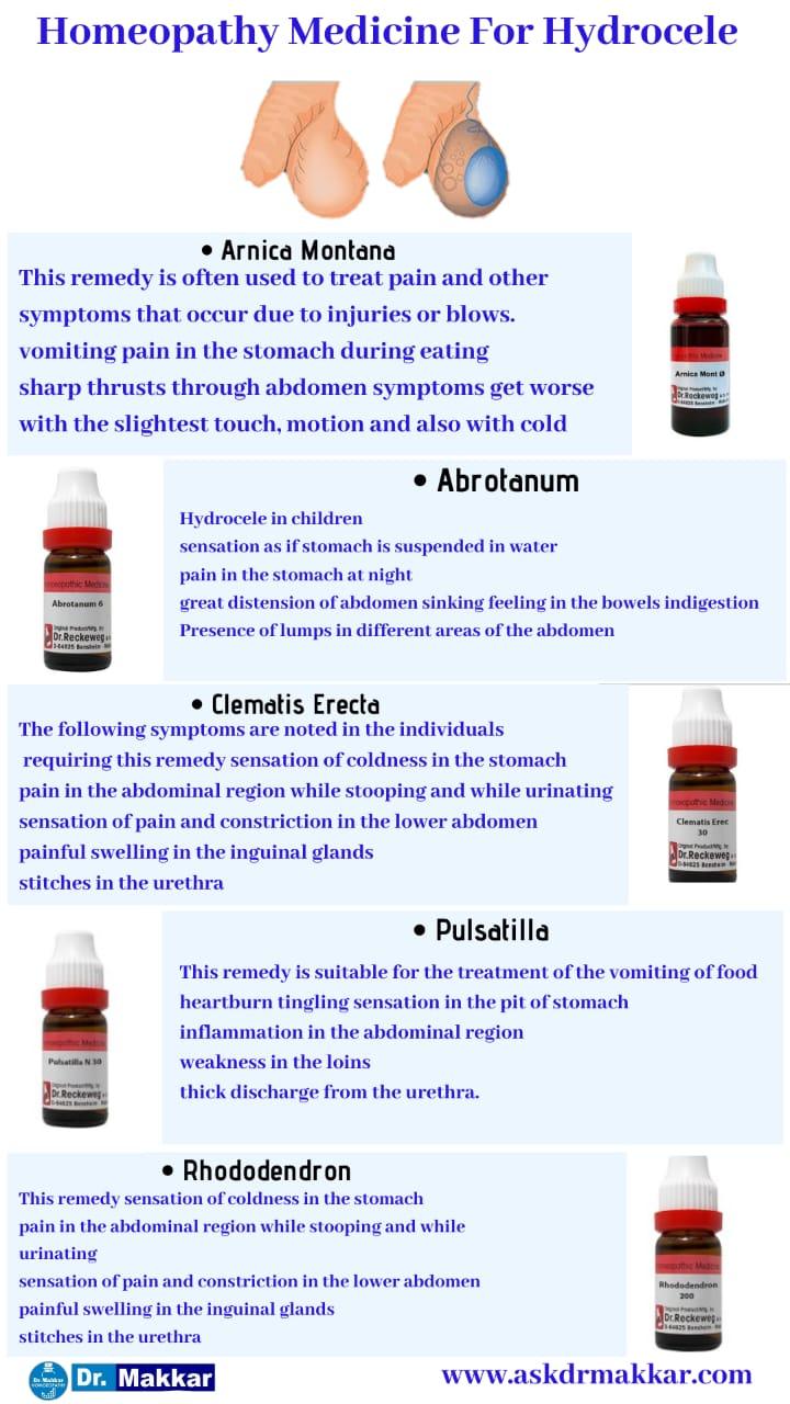 Best Homeopathic Medicines for Hydrocele || हाइड्रोसेले  की होम्योपैथिक ट्रीटमेंट दवा सर्वश्रेष्ठ होम्योपैथिक उपचार