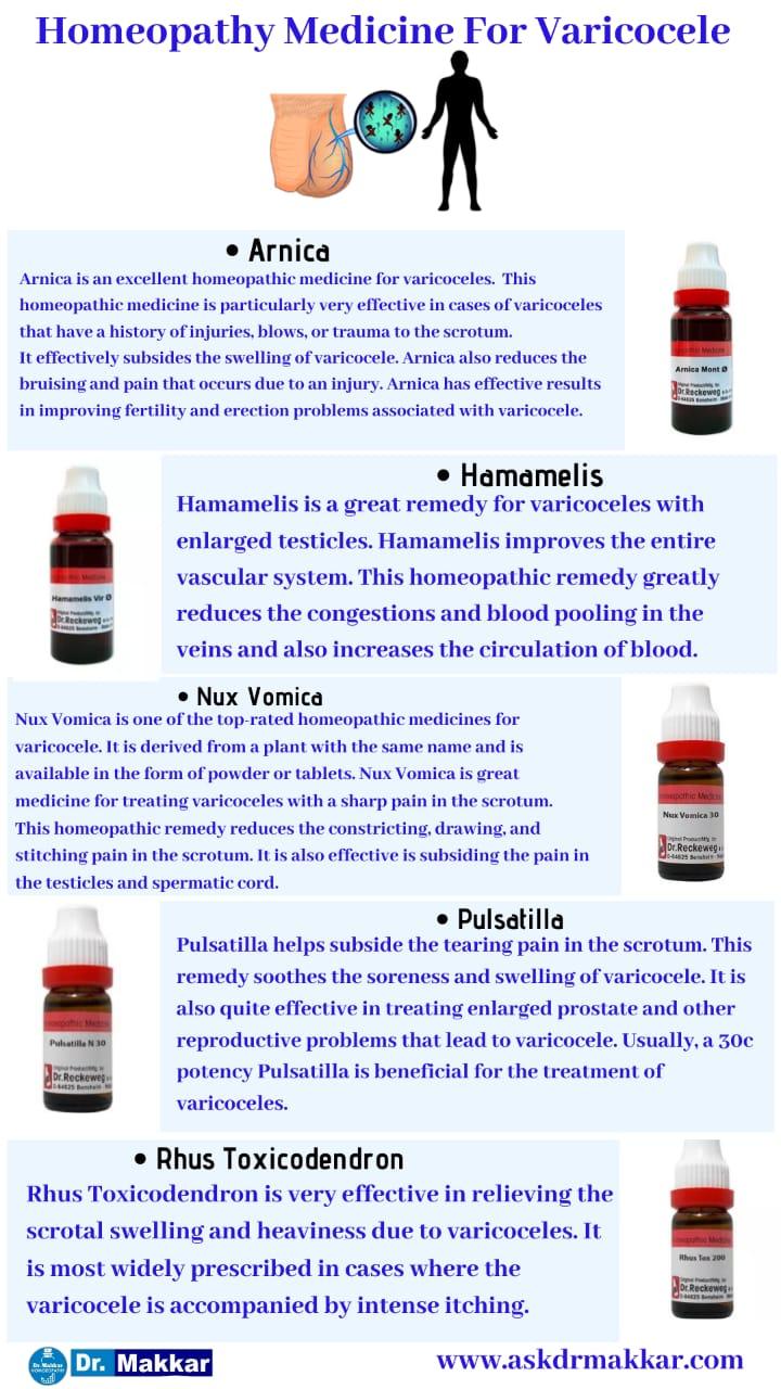Best Homeopathic Medicines for Varicocele with medicine || वैरिकोसेलेकी  की होम्योपैथिक ट्रीटमेंट दवा से होम्योपैथिक उपचार