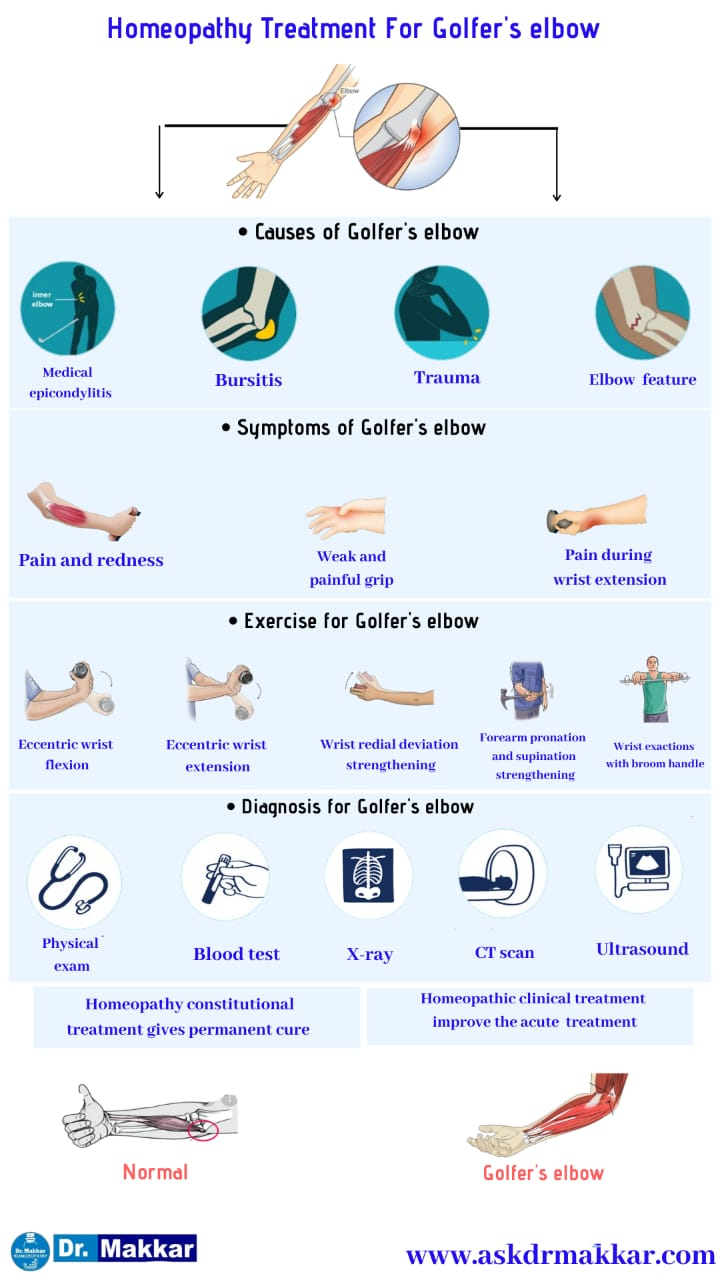 Best Homeopathic Treatment approach to Golfers Elbow    गोल्फर एल्बो के लक्षण के लक्षण का होम्योपैथिक दवा से इलाज होम्योपैथिक ट्रीटमेंट