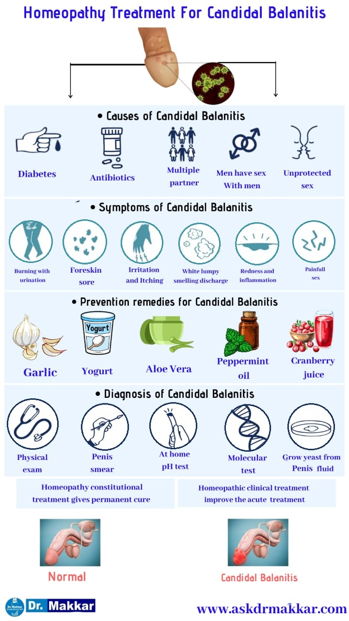 Best Homeopathic Treatment approach to Balanitis  बैलेनाइटिस यीस्ट  योनि में खुजली जलन संक्रमण तरु