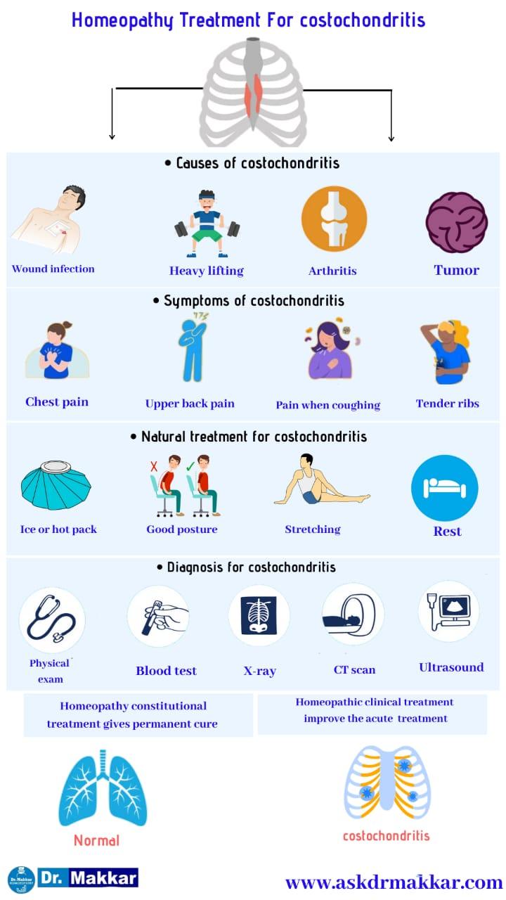 Best Homeopathic Treatment approach to Costochondritis Pain in Ribs    कोस्टोकोंडाइटिस पसली में सूजन का होम्योपैथिक दवा से इलाज होम्योपैथिक ट्रीटमेंट