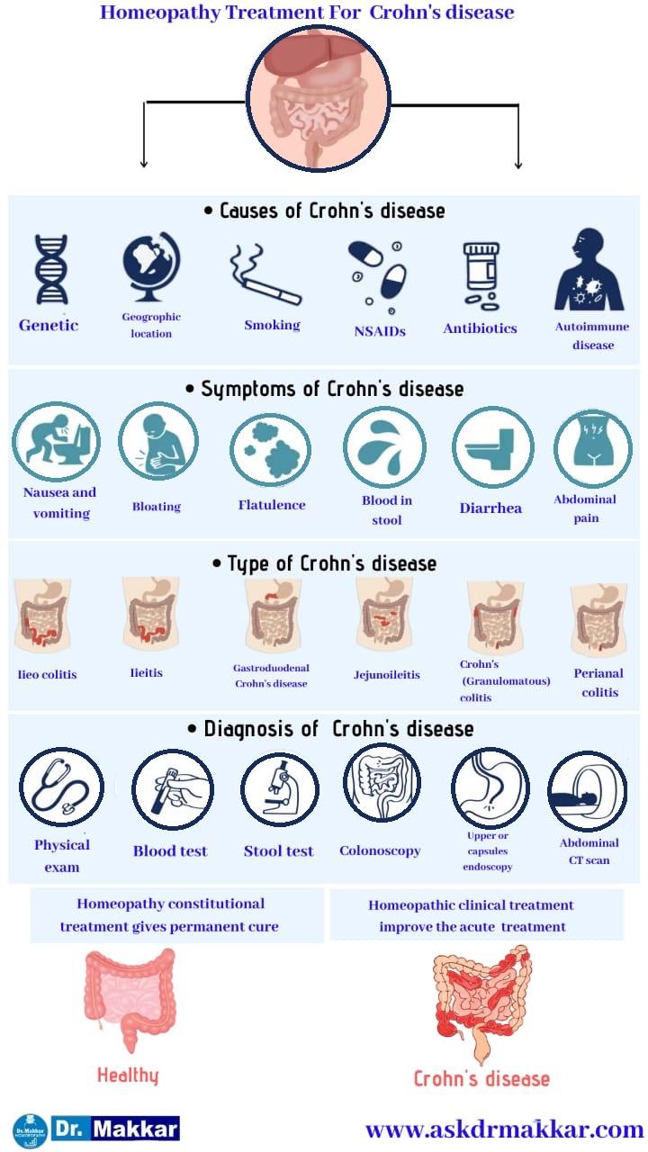 Best Homeopathic Treatment approach to Crohns Disease  Inflammation of intestine    आंतों में सूजन इन्फेक्शन क्रोहन रोग की का होम्योपैथिक इलाज दवा से ट्रीटमेंट