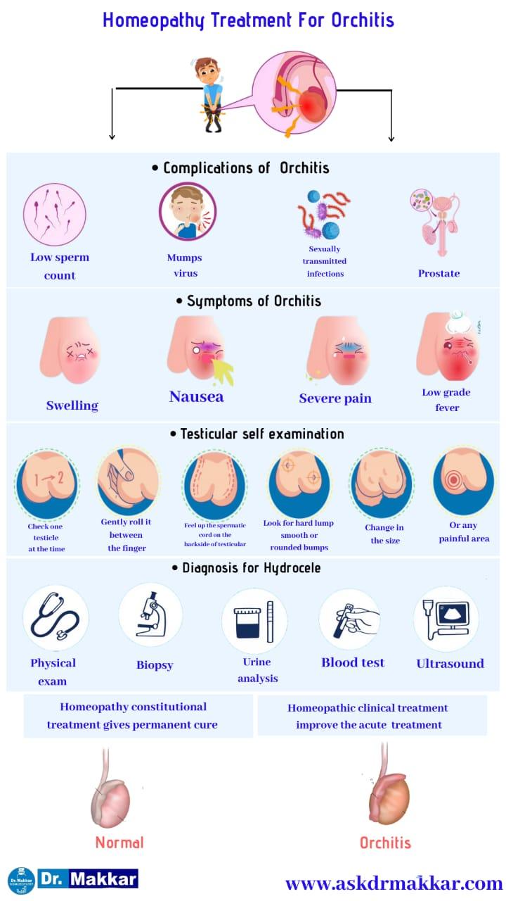 Best Homeopathic Treatment approach to Orchitis with Homeopathic medicine    ऑर्काइटिस का होम्योपैथिक इलाज बेस्ट होम्योपैथिक दवा  के साथ होम्योपैथिक ट्रीटमेंट