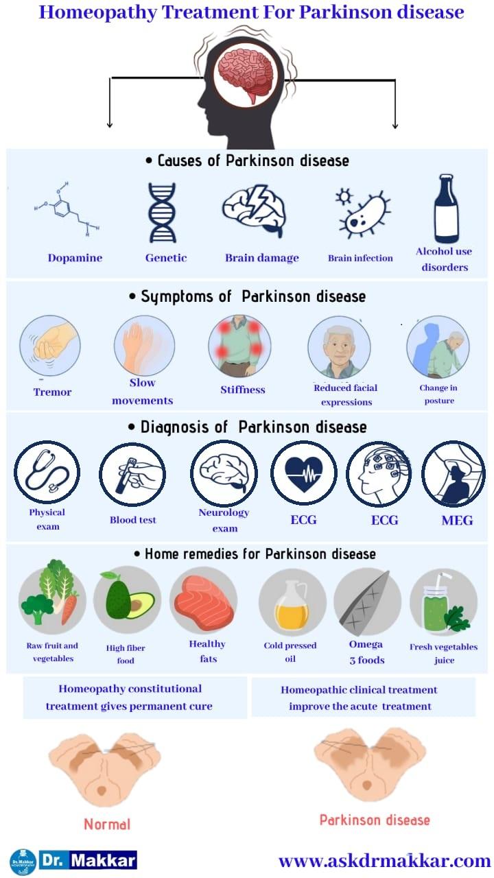 Best Homeopathic Treatment approach to Parkinson Disease || पार्किंसन डिजीज तंत्रिका तंत्र  का होम्योपैथिक इलाज  ट्रीटमेंट होम्योपैथिक दवाएं से इलाज