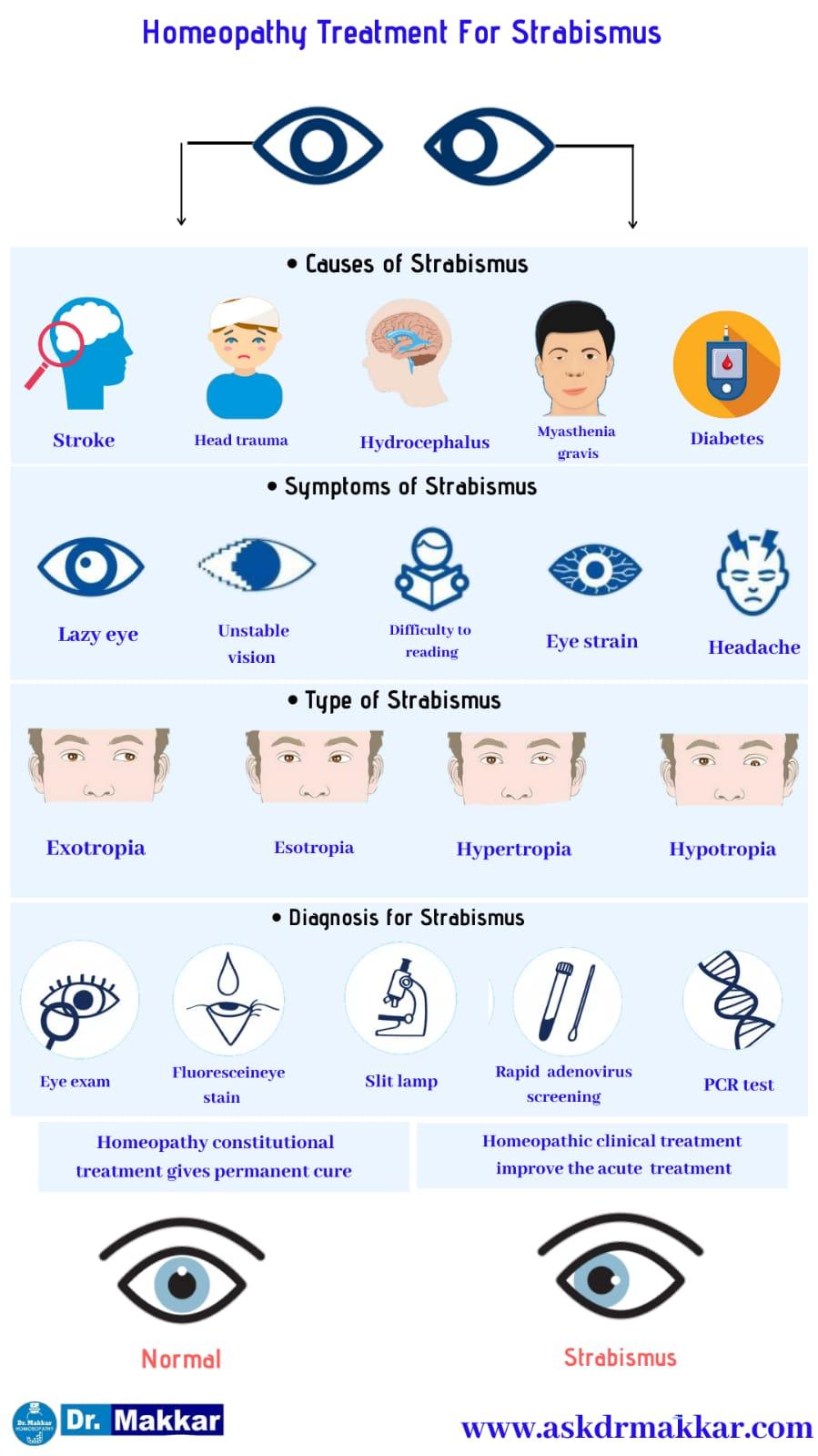Best Homeopathic Treatment approach to Strabismus Crossed Eye || भेंगापन तिर्यकदृष्टि स्ट्राबिस्मस का होम्योपैथिक दवा से इलाज होम्योपैथिक ट्रीटमेंट