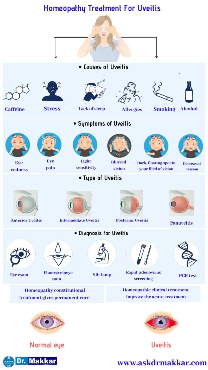 Best Homeopathic Treatment approach to Uveitis eye disease    यूवाइटिस आंखों से संबंधित रोग का होम्योपैथिक दवा से इलाज होम्योपैथिक ट्रीटमेंट