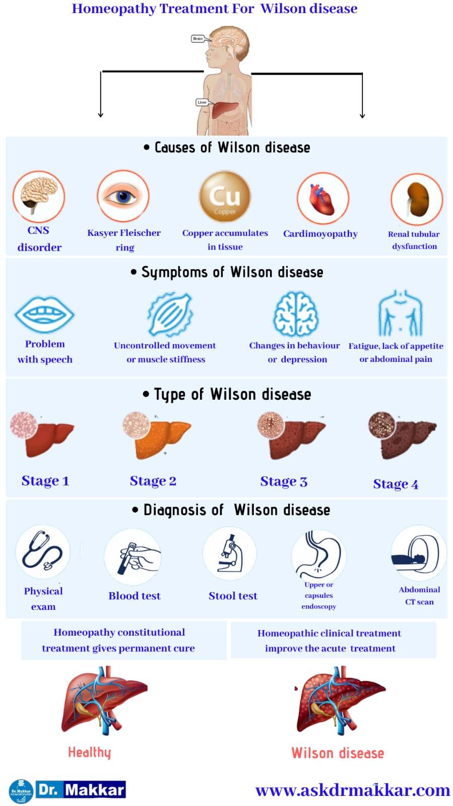 Best Homeopathic Treatment approach to Wilson Disease || विल्सन रोग का होम्योपैथिक दवा से इलाज होम्योपैथिक ट्रीटमेंट