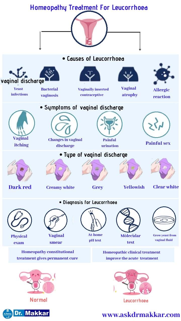 Best Homeopathic Treatment for Leucorrhoea which also called as white discharge    ल्यूकोरिया के लिए सर्वश्रेष्ठ होम्योपैथिक उपचार जिसे श्वेत प्रदर भी कहा जाता है