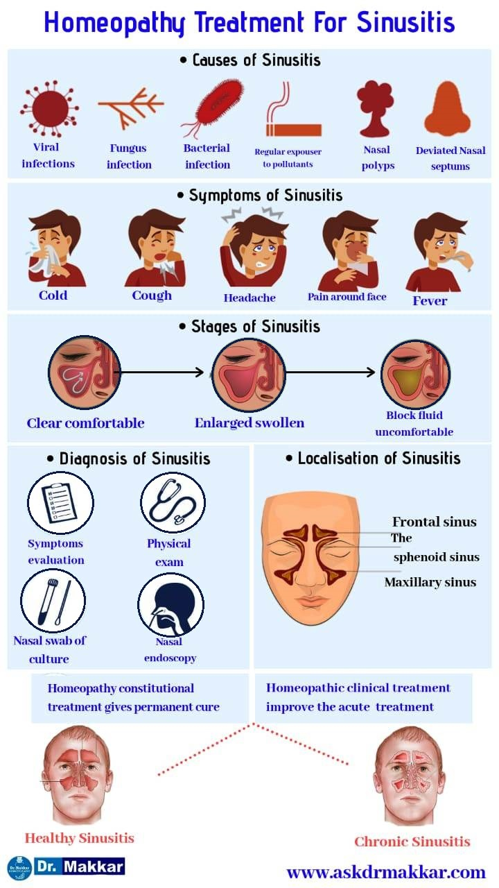 Best Homoeopathic Treatment:for Sinusitis chronic sinus disease - Non Surgical Treatment