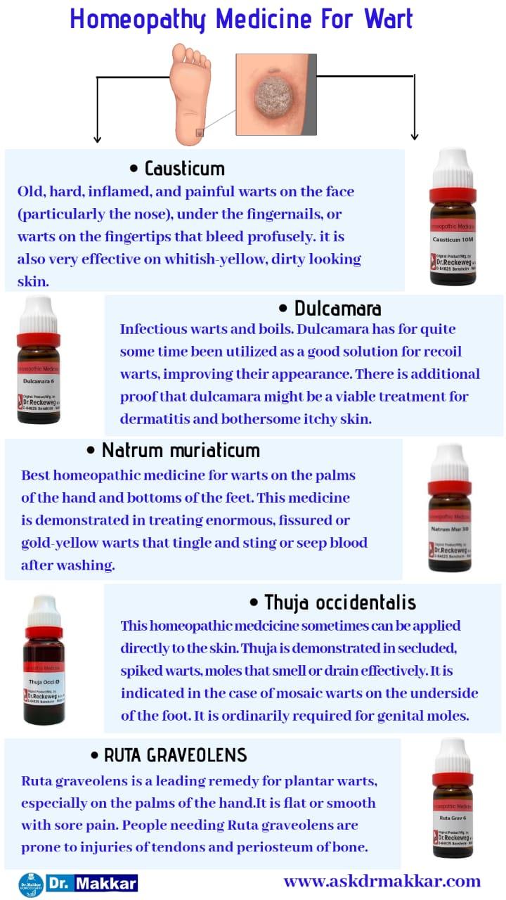 Best Homeopathic medicines for warts top remedies    कॉमन वार्ट्स मस्सों का इलाज होम्योपैथिक दवा से