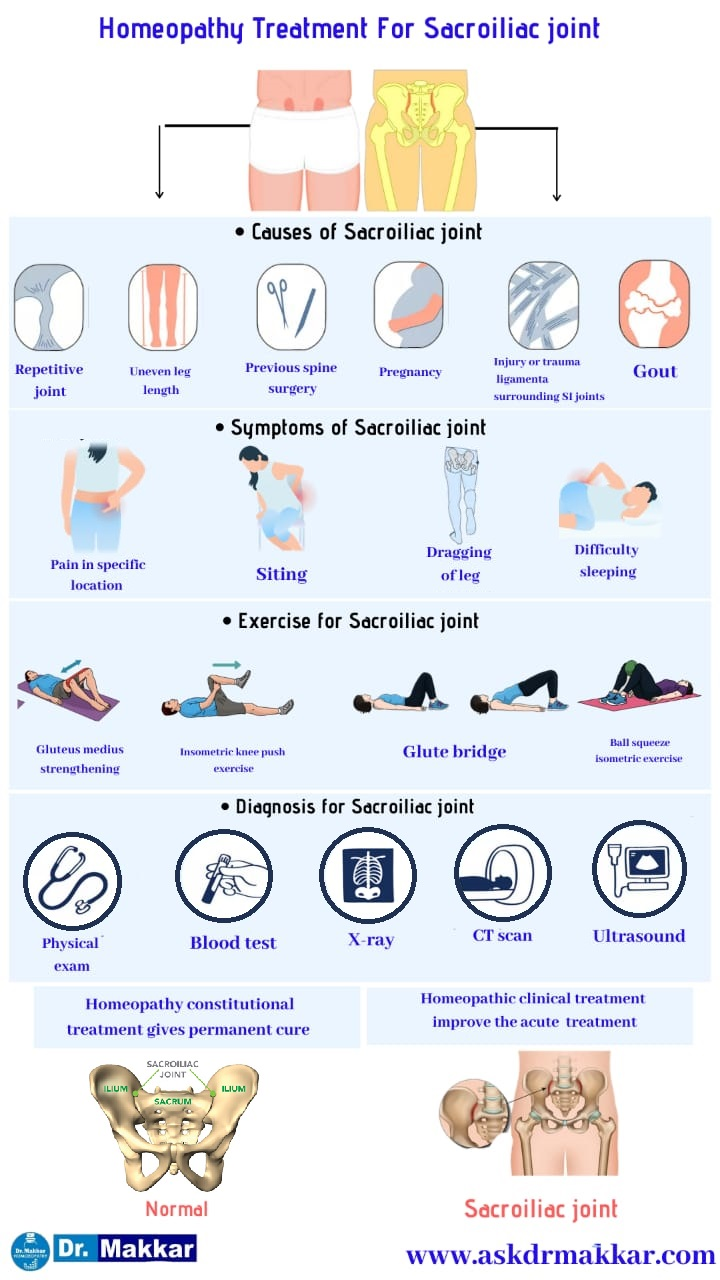 Best HomeopathicTreatment for Sacroiliac Joint Dysfunction SI Joint Pain || सैक्रोइलियक संयुक्त रोग जोड़ों का दर्द की होम्योपैथिक ट्रीटमेंट दवा से होम्योपैथिक इलाज