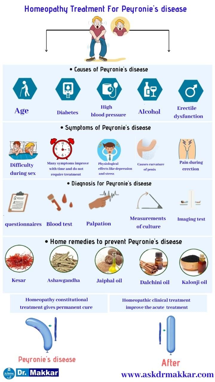 Best Homeopthic Treatment for Peyronies disease curved Penis || पेयरोनी डिजीजलिंग का टेढ़ापन मुंडा लिंग रोग दवा के साथ  बेस्ट होमियोपैथी उपचार