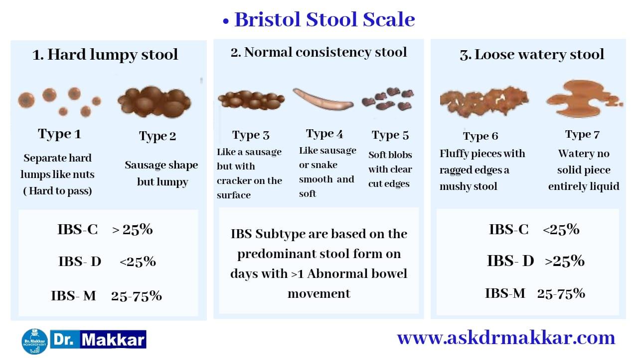 Bristol Stool Examination Relation to IBS-C vs IBS-D
