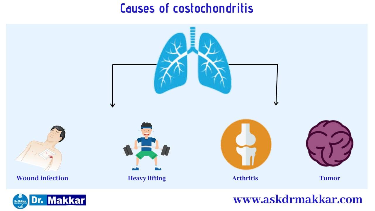 Cause of Costochondritis Pain in Ribs    कोस्टोकोंडाइटिस पसली में सूजन के कारण