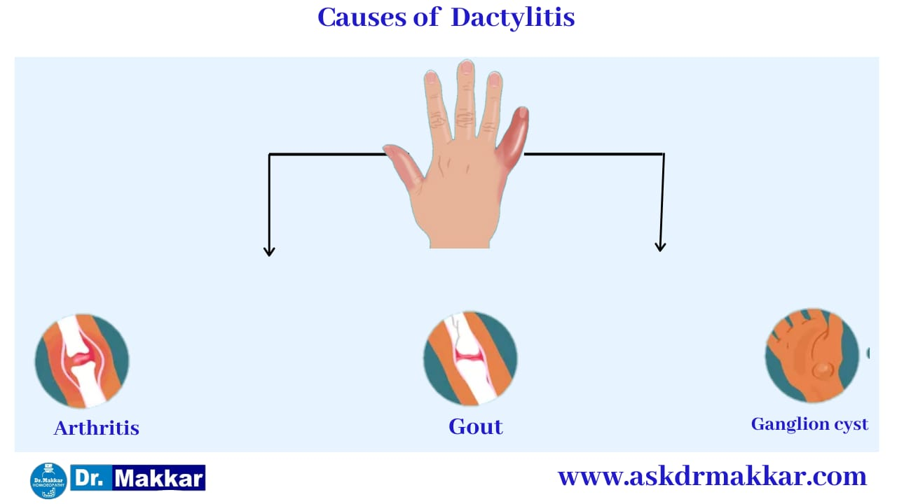 Cause of Dactylitis Swelling in Digits Toes Fingers      डक्टाइलिटिस के कारण हाथ पैरों की सूजन