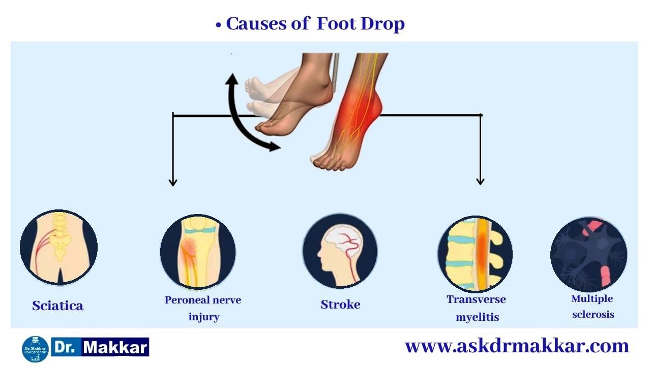 Cause of Foot Drop Peroneal Nerve ||  फुट ड्राँप अनुजंघास्थिक तंत्रिका चोट के कारण
