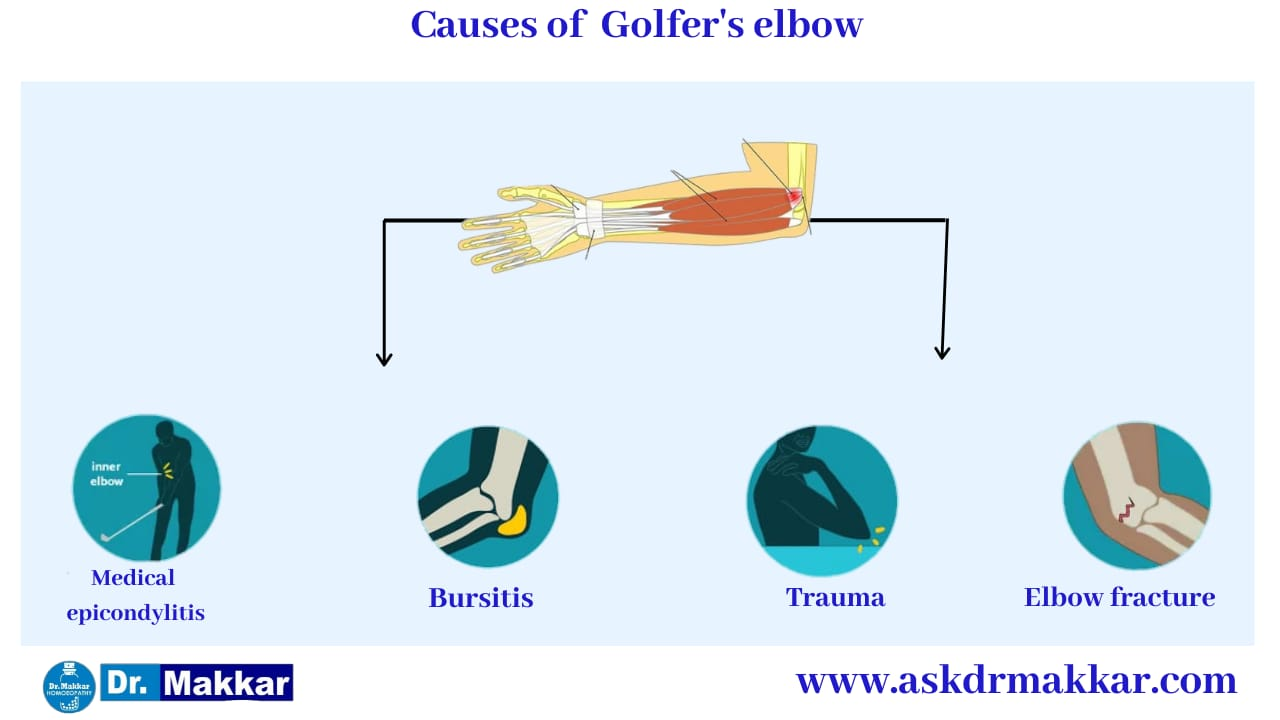 Cause of Golfers Elbow    गोल्फर एल्बो के  कारण