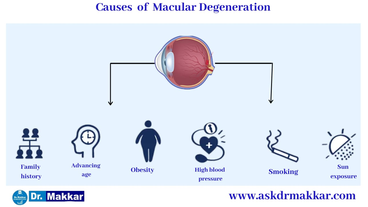 Cause of Macular degeneration ARMD || मैक्युलर डीजेनेरेशन के कारण
