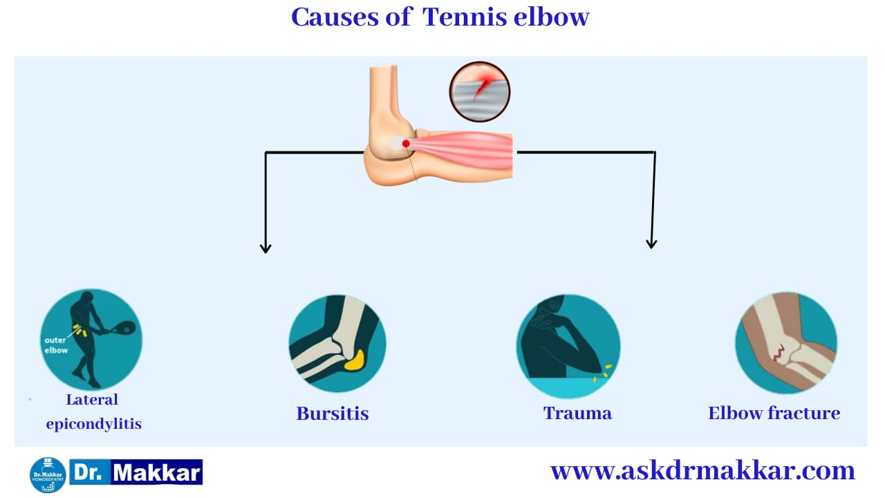 Cause of Tennis Elbow || टेनिस एल्बो के  कारण