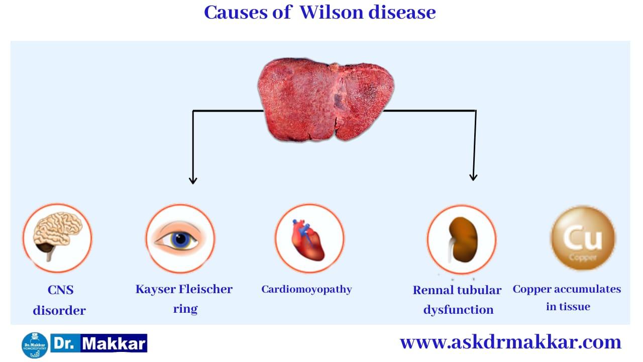 Cause of Wilson Disease   विल्सन रोग के कारण