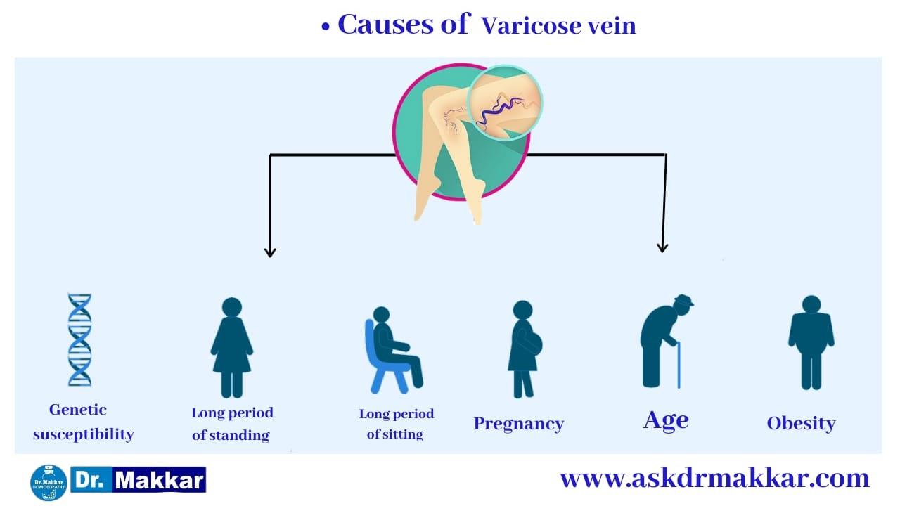 Varicose vein Causes for development of varicosity  ||  वैरिकोसिटी के विकास के कारण