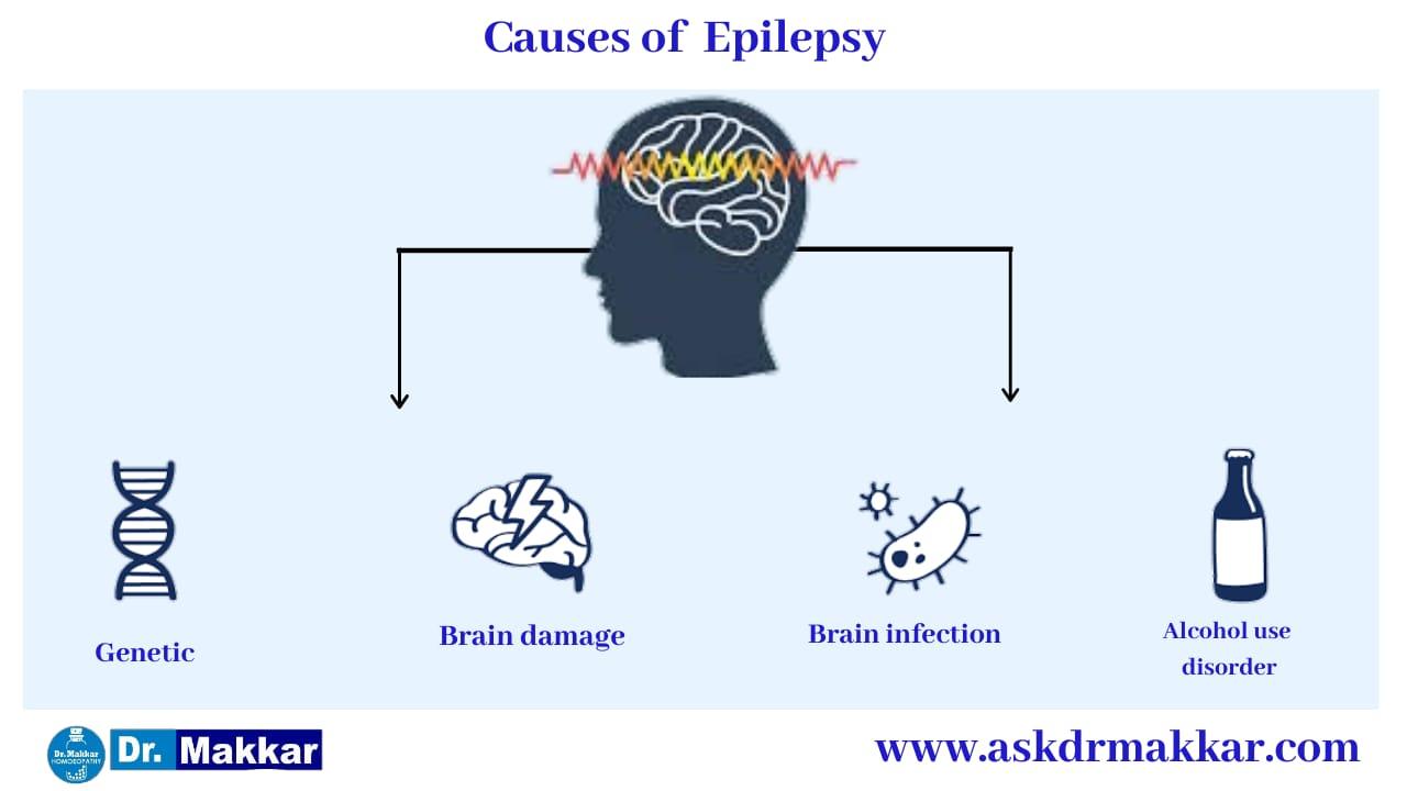 Causes of Epilepsy seizure  मिर्गी का दौरा के कारण