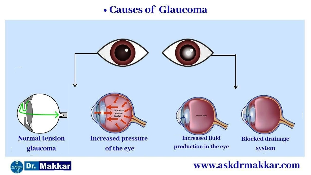 Causes of Glaucoma    ग्लूकोमा के कारण