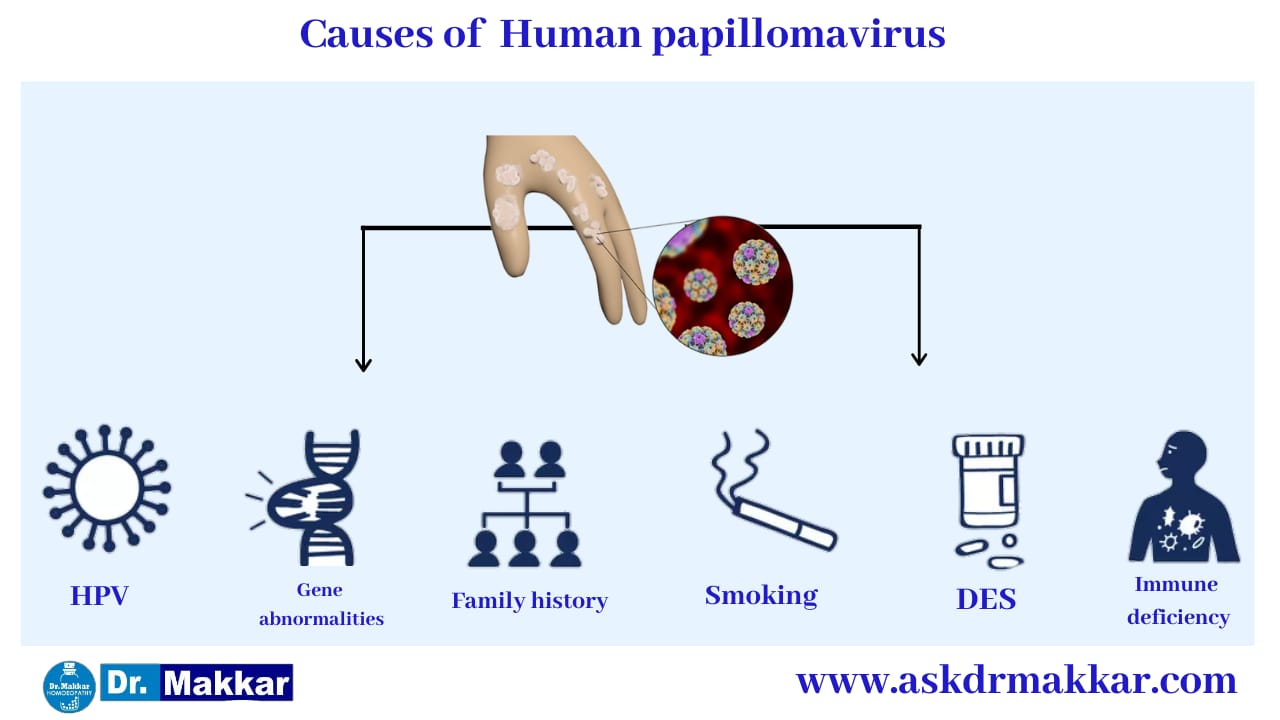 Causes of Human Pappiloma Virus HPV ||  ह्यूमन पेपिलोमा वायरस एचपीवी के कारण