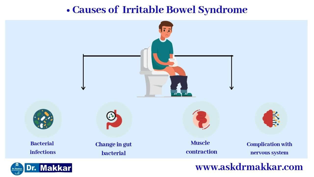 Causes of Inflammatory bowel disease IBD   संवेदनशील आंत्र संलक्षण आईबीएस इरिटेबल बॉवेल सिंड्रोम स्पॉन्डिलाइटिस के कारण