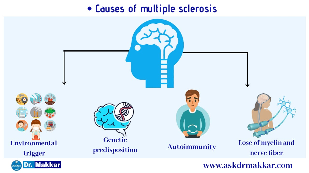 Causes of Multiple Sclorosis MS