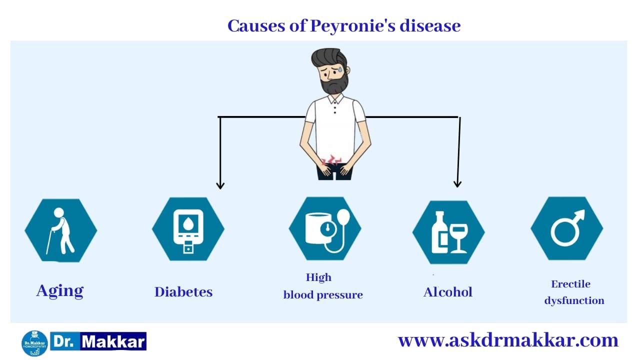 Causes of Peyronies disease curved Penis || पेयरोनी डिजीजलिंग का टेढ़ापन मुंडा लिंग रोग के कारण