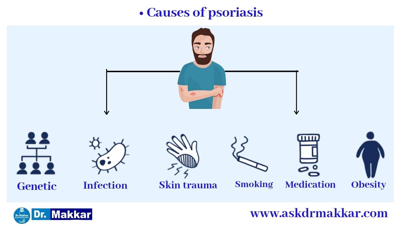 Causes of Psoriasis सोरायसिस होने के कारण