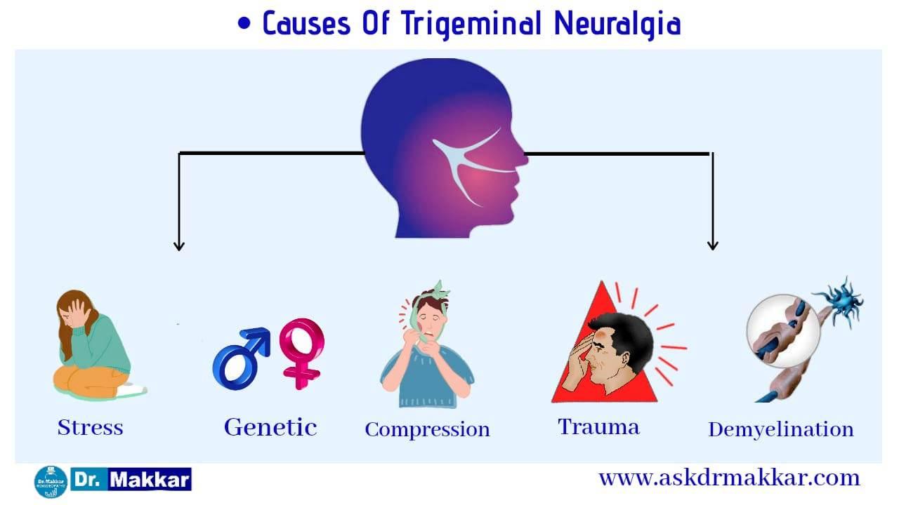 Causes of Trigerminal Neuralgia