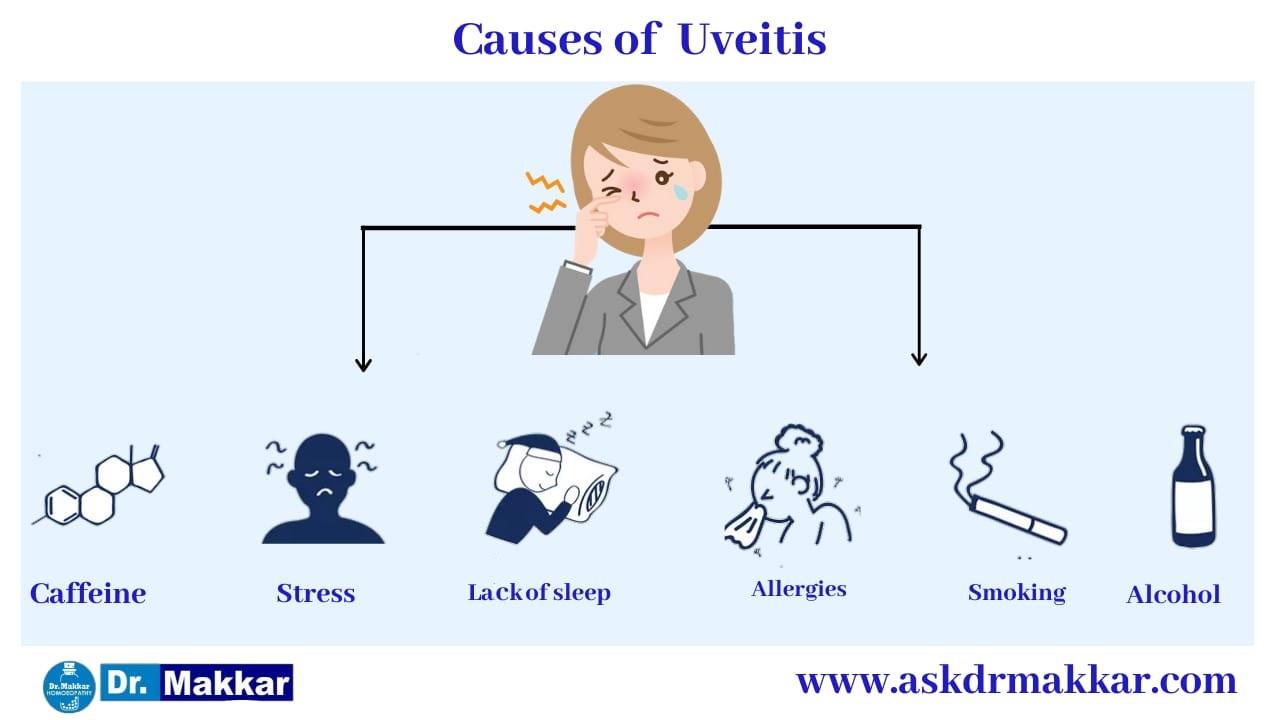 Cause of Uveitis eye disease      यूवाइटिस आंखों से संबंधित रोग के कारण