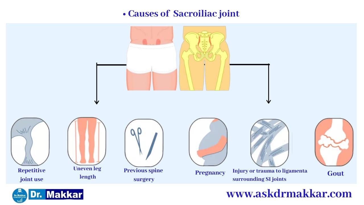 Causes of e Sacroiliac Joint Dysfunction SI Joint Pain || सैक्रोइलियक संयुक्त रोग जोड़ों का दर्द के कारण