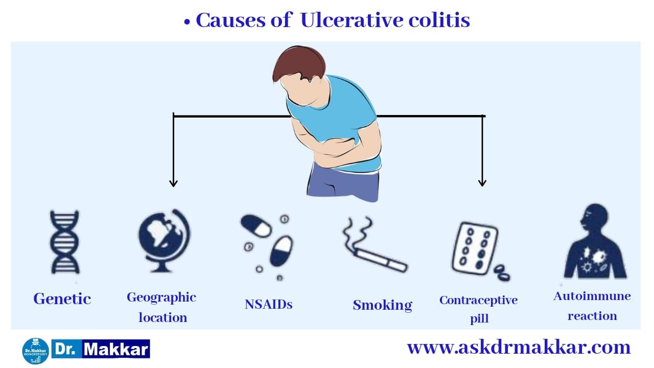 Causes of ulcerative colitis || आंतों में सूजन अल्सरेटिव कोलाइटिस के कारण