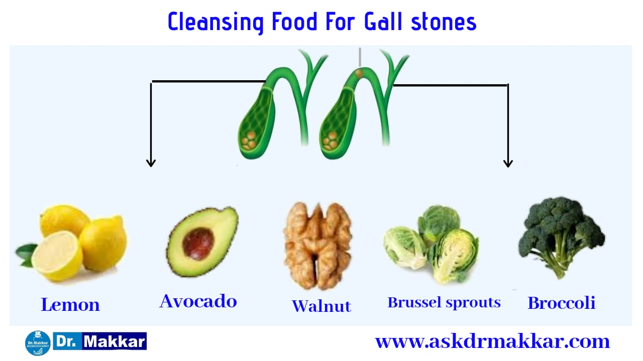 Cleansing food for gall stones Cholelithiasis