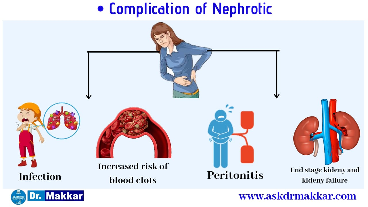 Complication of Neprotic Disease