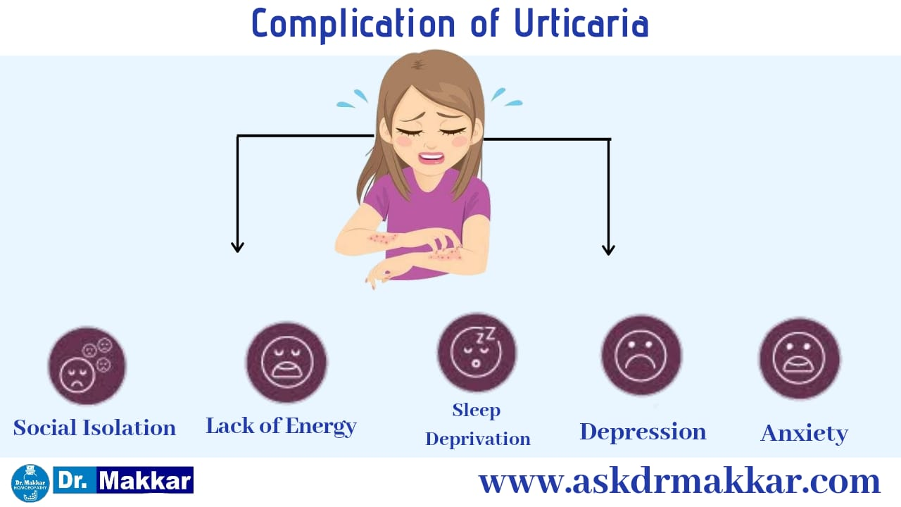 Complication of urticaria