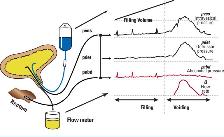 Urine flow metery  Pressure test (Cystometry)