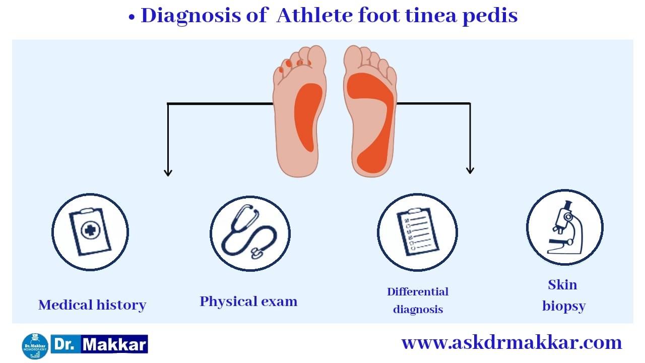 Diagnosing criteria for tinea pedis or athlete feet || टिनिया पेडिस या एथलीट फुट के लिए मानदंड का निदान करना