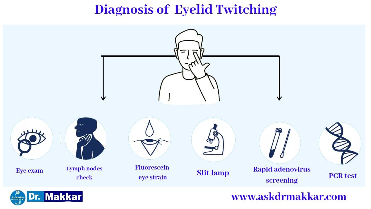 Diagnosis and investigations for Blepharospasm Twitching eyelid || ब्लेफरोस्पाज्म आंख फड़कने झपकना की मूल्यांकन  जाँच पड़ताल