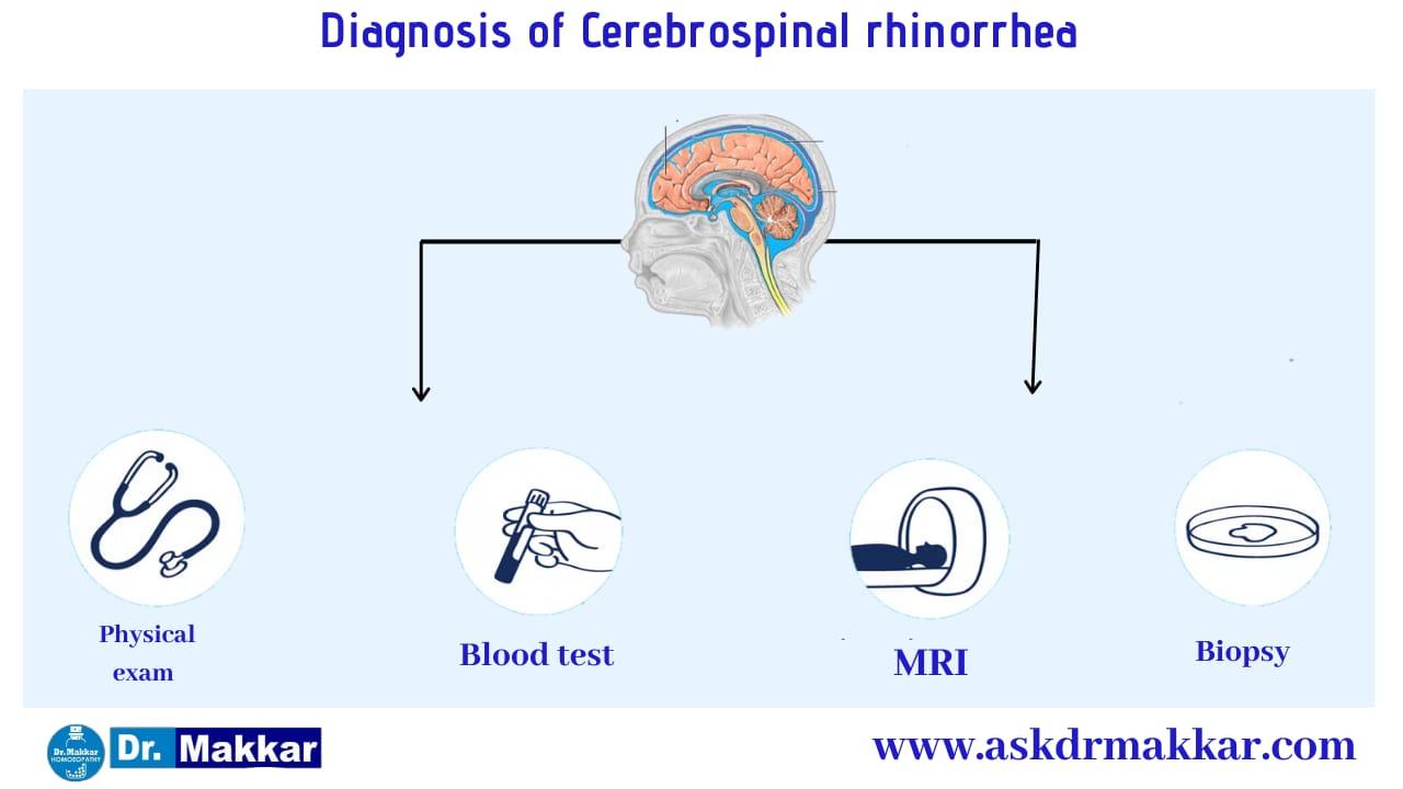 Diagnosis and investigations for Cerebrospinal Fluid (CSF) Leak Rhinorrhea || सेरिब्रल स्पाइनल फ्लूइड लीक रिसाव राइनोरिया जाँच पड़ताल