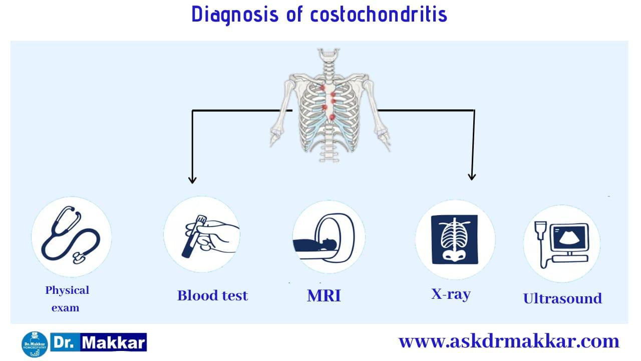 Diagnosis and investigations for Costochondritis Pain in Ribs    कोस्टोकोंडाइटिस पसली में सूजन की मूल्यांकन  जाँच पड़ताल