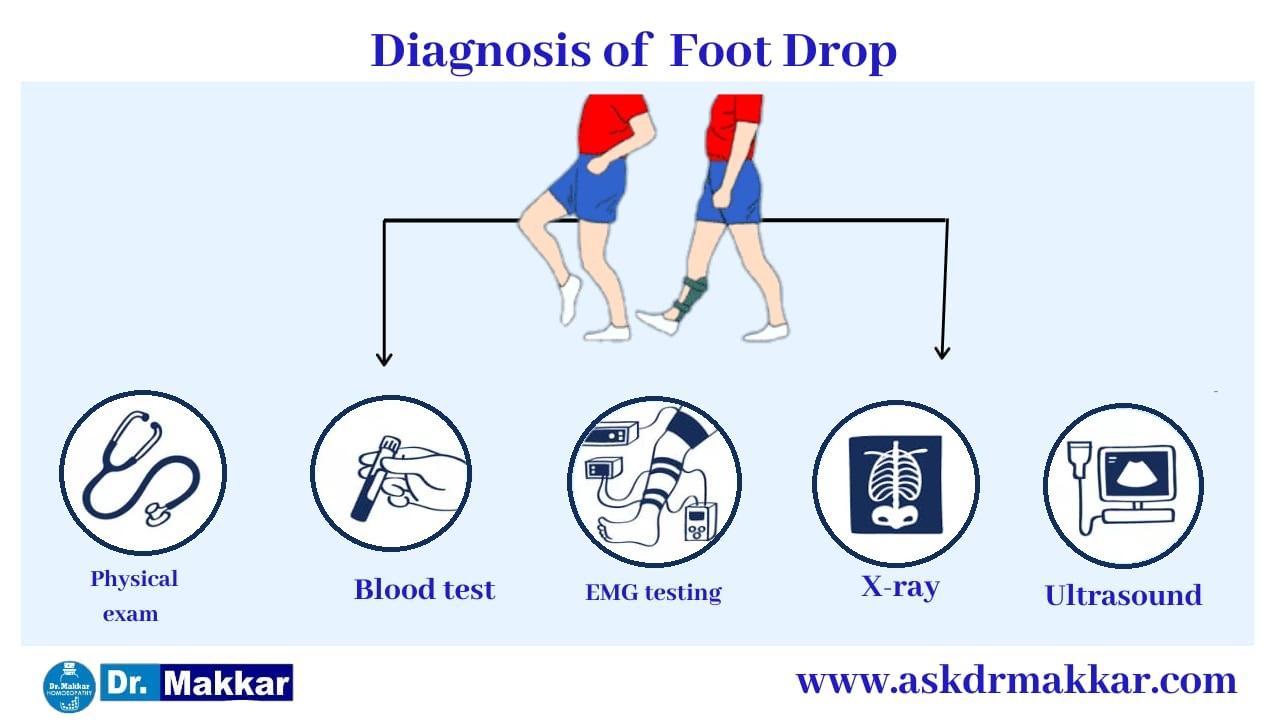 Diagnosis and investigations for Foot Drop Peroneal Nerve || फुट ड्राँप अनुजंघास्थिक तंत्रिका की मूल्यांकन  जाँच पड़ताल
