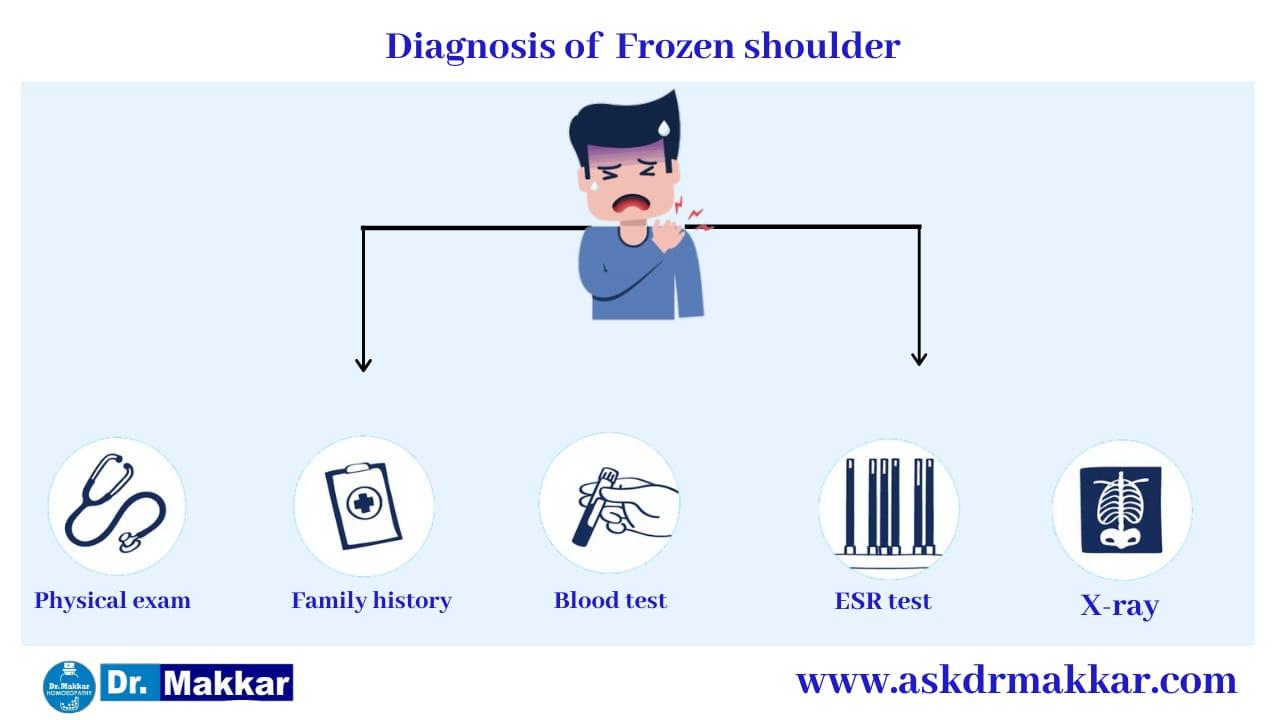 Diagnosis and investigations for Frozen Shoulder stiffness of shoulder    कंधे की अकड़न फ्रोज़न शोल्डर की मूल्यांकन  जाँच पड़ताल