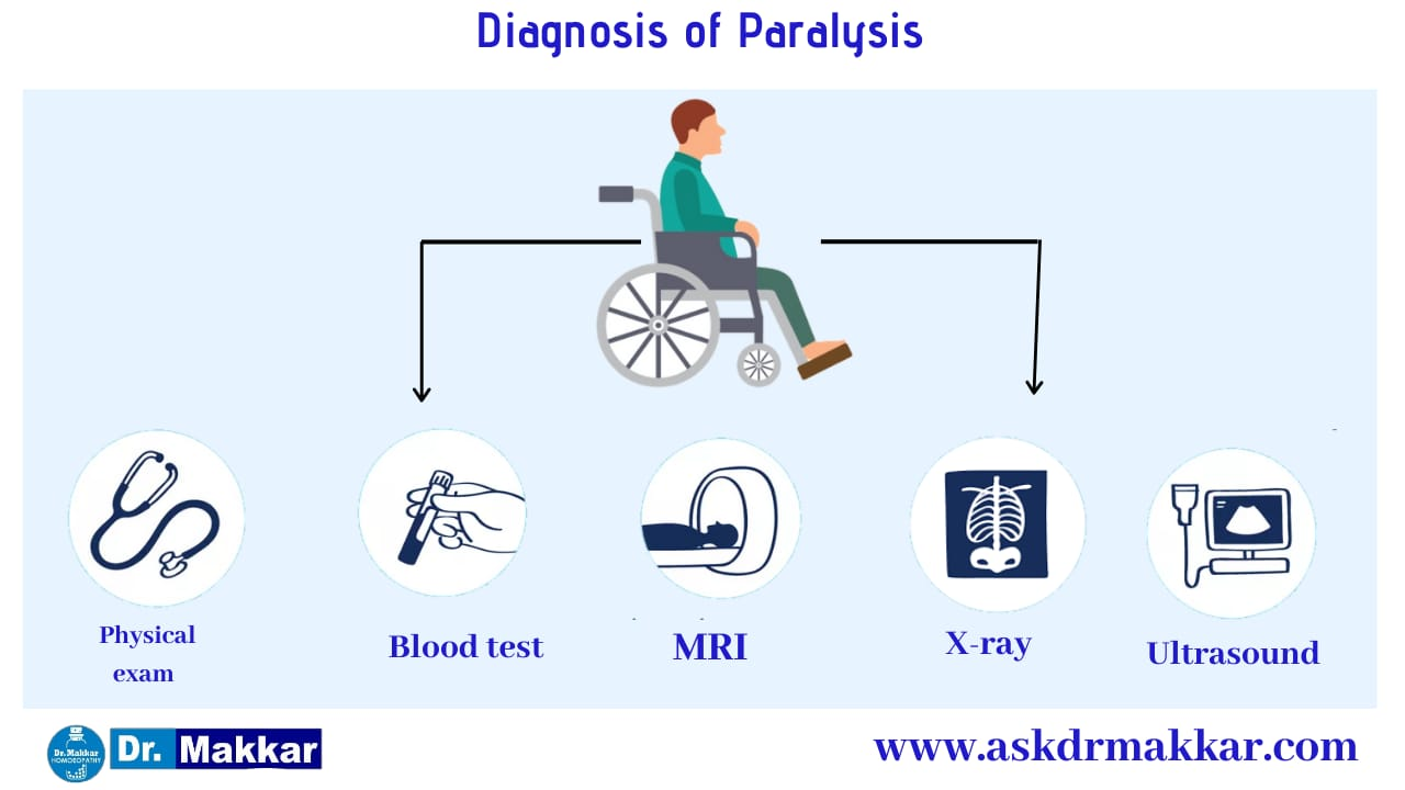 Diagnosis and investigations for Paralysis || लकवा मारना पक्षाघात  की मूल्यांकन  जाँच पड़ताल
